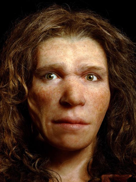 Il modello che ha una malattia di pigmentazione di pelle