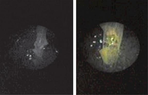 Immagine ottenuta tramite endoscopio (RSNA RadioGraphics)