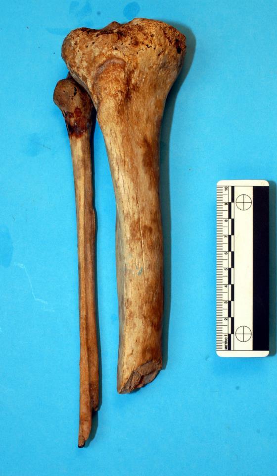 La tibia e la fibula di destra di Giovanni: sono evidenti i segni della ferita da arma da fuoco e dell'amputazione di maestro Abram (Università di Pisa)