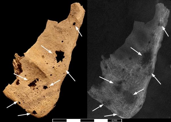 Lesioni sulla scapola destra (Trustees of the British Museum)