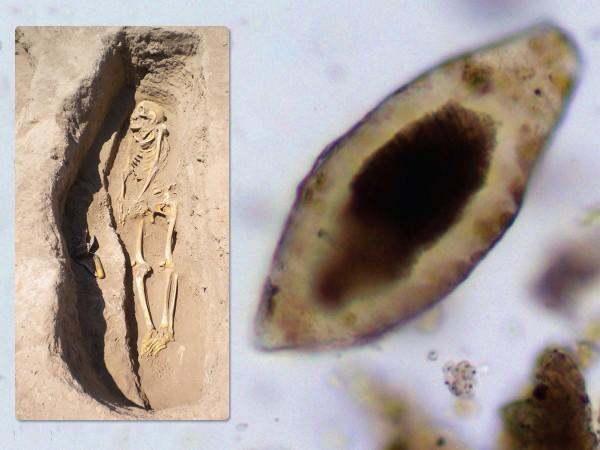 La sepoltura e l'uovo di Schistosoma (Piers Mitchell; inset - Gil Stein, Oriental institute, University of Chicago)