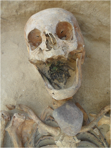 Donna di 45 - 49 anni con una pietra posta direttamente sulla gola (PLOS ONE)