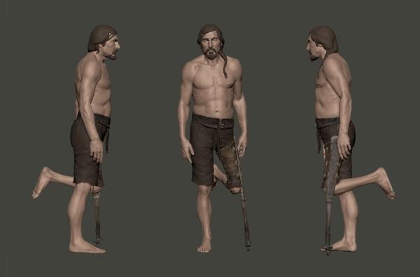 Ricostruzione dell'uso della protesi (DAI)