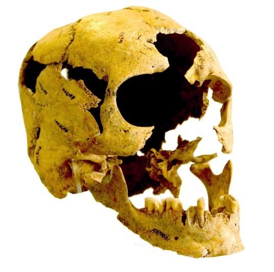 Cranio dal sito iraniano di Tepe Abdul Hossein (Fereidoun Biglari, National Museum of Iran)