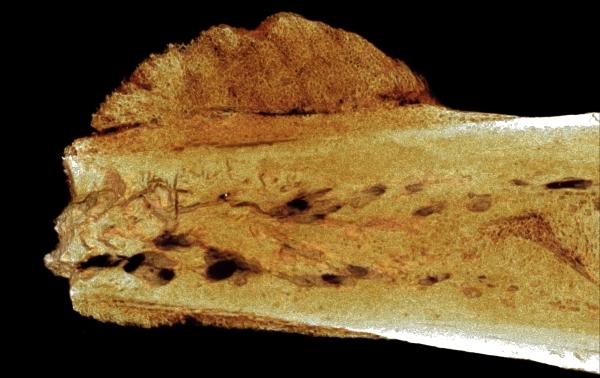Il cancro rilevato su un osso del piede (University of Witwatersrand)