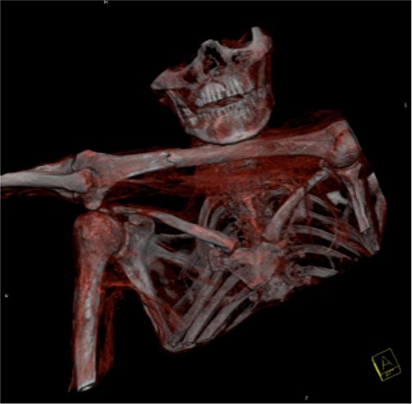TAC in 3D del torace (Museo Archeologico dell'Alto Adige/Ospedale Regionale di Bolzano)