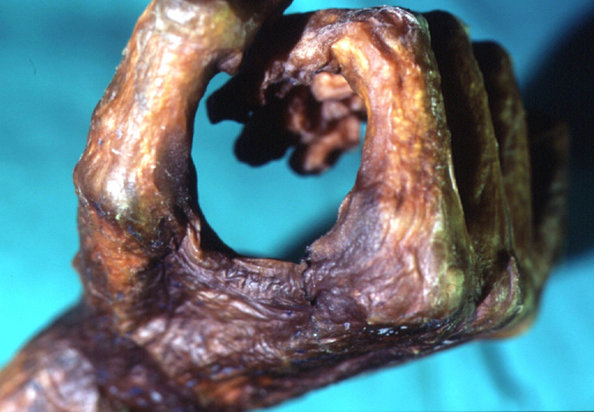 Le ultime ricerche su Ötzi: una morte inaspettata, i contatti con la Toscana e una voce profonda