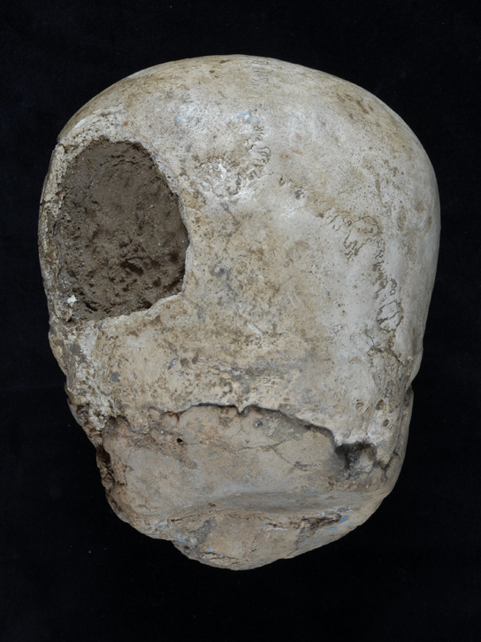 Al cranio era stato praticato un foro per inserirvi della terra al fine di irrobustire la struttura (British Museum)
