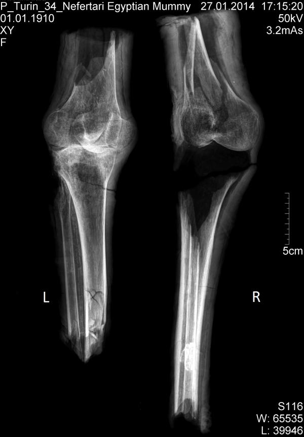 I resti di femore, rotula e tibia ai raggi X (Michael E. Habicht)